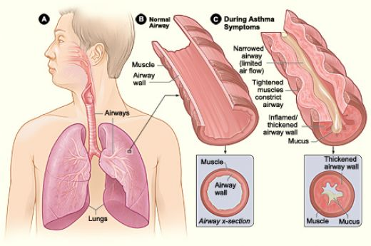 Asthmatic Adult